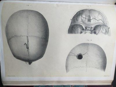 Sir Jonathan Hutchinson - Illustrations of Clinical Surgery (2)