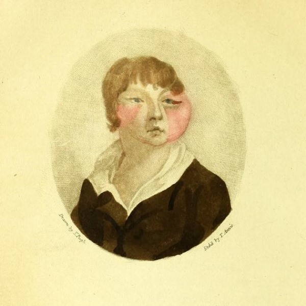 Boy with cow pox, from an anti-vaccination pamphlet by William Rowley, 1805