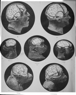 D.J. Cunningham, Contribution to the Surface Anatomy of the Cerebral Hemispheres (Dublin, Royal Irish Academy, 1892). Plate VIII.