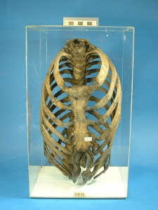 A deformed ribcage from the Hunterian Museum