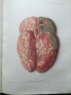 Sir Jonathan Hutchinson - Illustrations of Clinical Surgery (4)