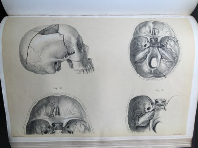 Sir Jonathan Hutchinson - Illustrations of Clinical Surgery (3)