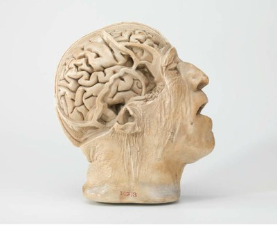 D.J. Cunningham and H Casciani, head of a 75-year old man. Plaster, before 1892. Hunterian Museum at the Royal College of Surgeons RCSHM/D 713
