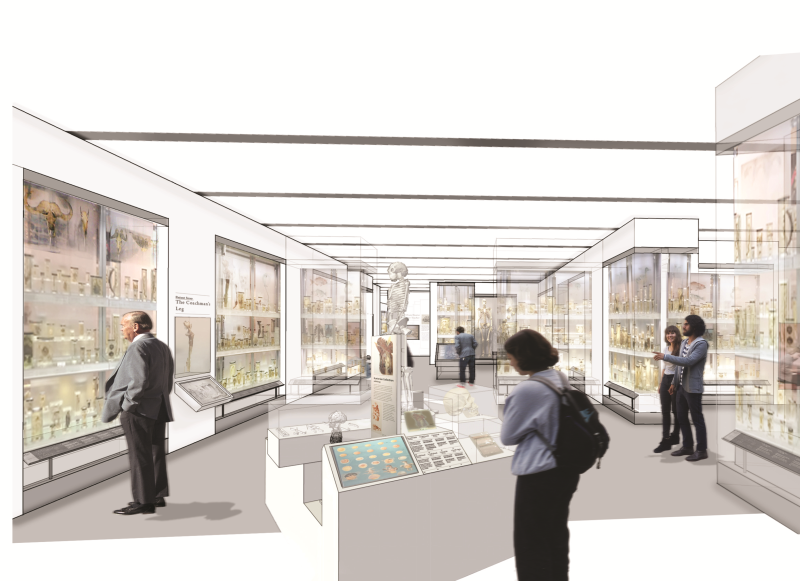 Project Transform: the Hunterian Museum