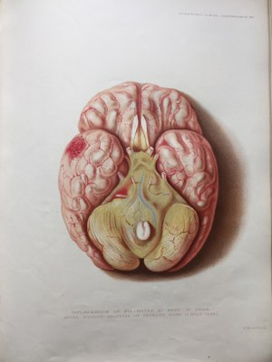 Sir Jonathan Hutchinson - Illustrations of Clinical Surgery (5)