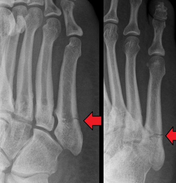 Sir Robert Jones 2: the Jones fracture