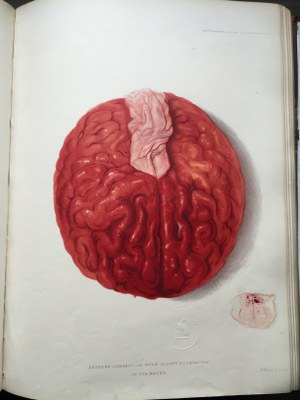Sir Jonathan Hutchinson - Illustrations of Clinical Surgery (6)
