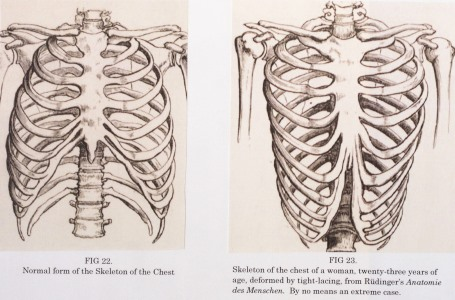 The dangers of tight lacing: the effects of the corset